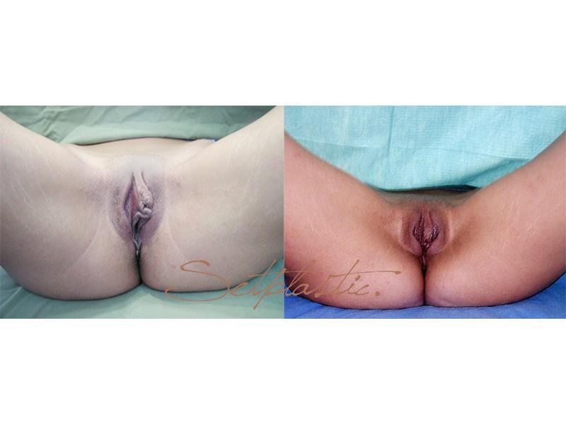Интимная Хирургия Для Мужчин Цены
